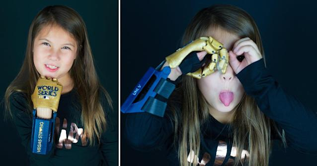 Hailey Dawson, 7, with her 3-D printed World Series hand. (MLB)