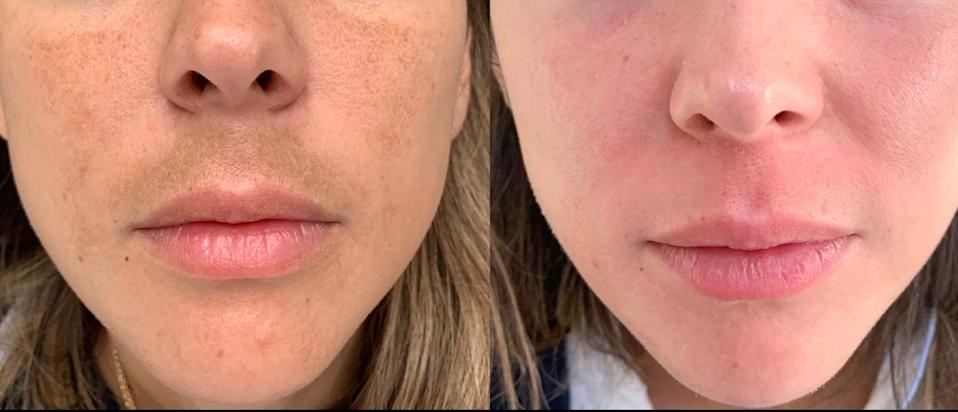 A Skin Medicinals patient before and after using a compounded topical for melasma.