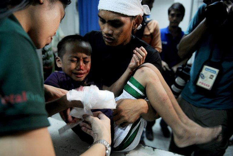 A boy, injured by a firecracker, arrives at the Jose Reyes Memorial Medical Center in Manila, early on January 1, 2013. However hundreds are hurt annually by firecrackers and stray bullets, despite strict orders from President Benigno Aquino for police to clamp down on guns and ban powerful firecrackers