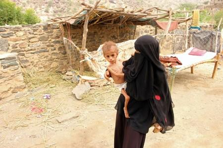 Grandmother of malnourished Muath Ali Muhammad carries him near their home in Aslam district of the northwestern province of Hajja