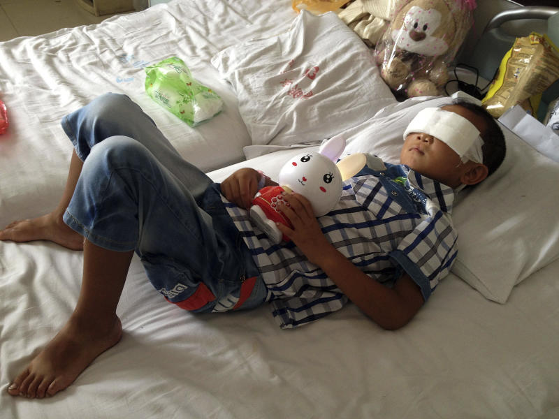 Guo Bin recuperates from an attack in the rural area of Linfen city that left him blind, in a hospital in Taiyuan in northwest China's Shanxi province on Wednesday, Aug. 28, 2013. A woman tricked the 6-year-old boy into going into a field, and then gouged out his eyes, police said Wednesday. (AP Photo) CHINA OUT