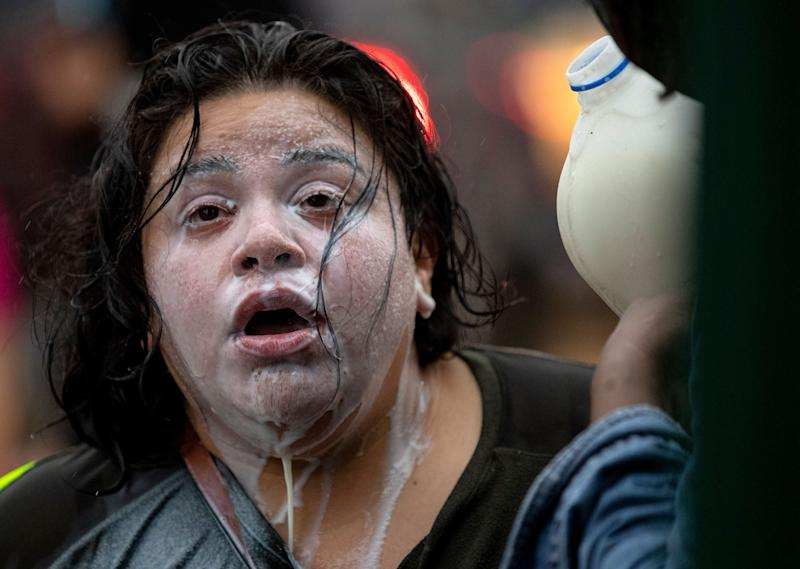 <strong>Milk drains from the face of a protester who had been exposed to percussion grenades and tear gas outside the Minneapolis Police 3rd Precinct on Tuesday, May 26.</strong> (Photo: ASSOCIATED PRESS)