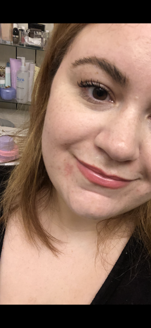 My attempt at covering up PD with makeup.