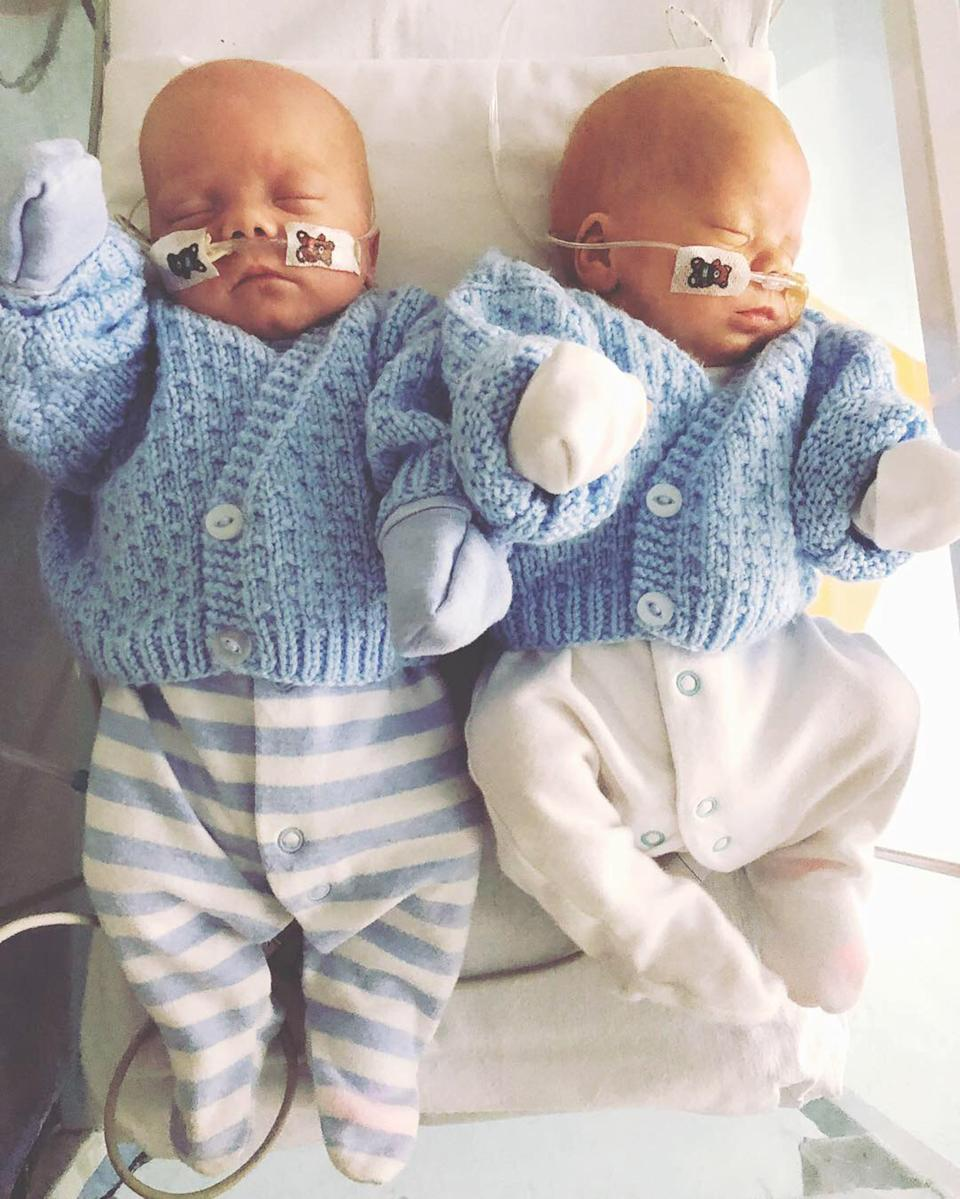 Twins Dylan and Oscar still have a special bond despite spending time apart after their birth. (Caters)