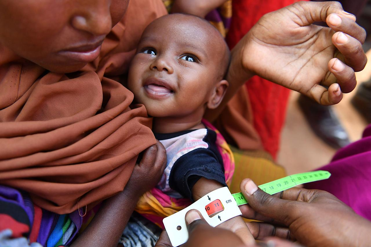 <p>An acute malnourished child is measured the arm perimeter by a UNICEF staff inside the Internally Displaced Persons camp in Doolow, a border town with Ethiopia, in Somalia, on March 20, 2017. One out of seven Somali children dies before its fifth birthday, and acute malnutrition weakens the immune system, which makes affected children more susceptible to disease such as measles, a UN spokesman told reporters earlier this month. In Somalia, drought conditions are threatening an already fragile population battered by decades of conflict. Almost half the population are facing acute food insecurity and in need of humanitarian assistance. Some 185,000 children are expected to suffer from severe acute malnutrition this year, and the figure may rise to 270,000 in the next few months, the UN Children's Fund (UNICEF) said in February. (Photo: Xinhua/Sun Ruibo via Getty Images) </p>