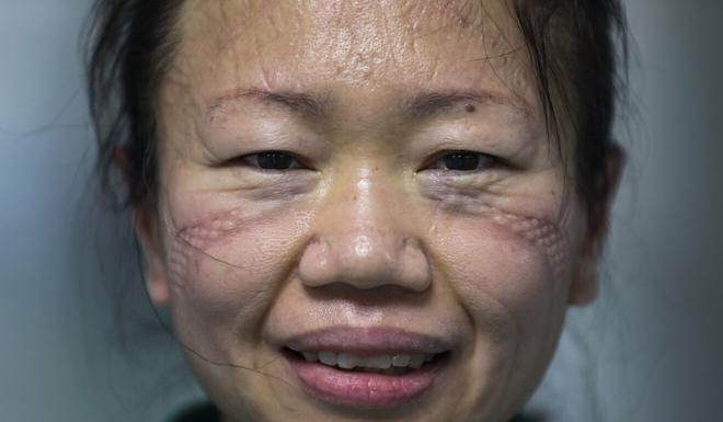 Marks left behind from wearing protective gear for long hours on a face of a nurse at Jinyintan Hospital in Wuhan, China. Photo: AP