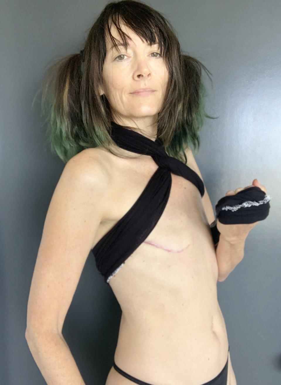 Writer, advocate and breast cancer survivor Renee Ridgeley became a flat activist after first opting for reconstruction and later, after health complications, having her implants removed. (Photo courtesy Renee Ridgeley)