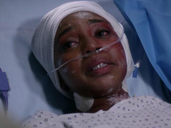 Stephanie with her head in a cast and in a hospital bed on Greys Anatomy