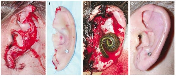 Woman's Ear Reattached with Help of Leeches