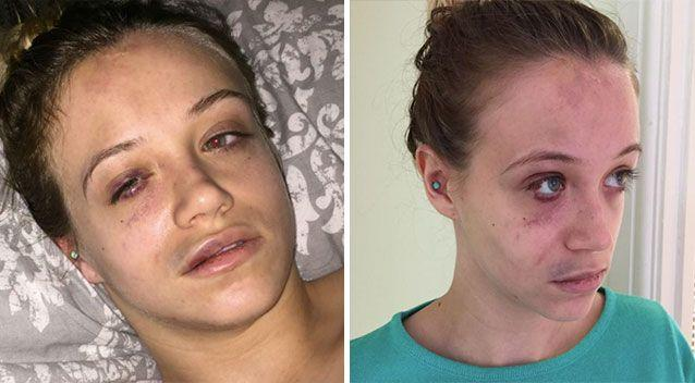 The 21-year-old shared shocking pictures of her busted face, bruised mouth and bleeding eye in the aftermath of the attack. Picture: Facebook