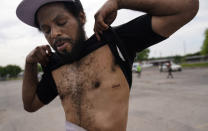 Demetrius Poindexter, 40, of St. Louis, lifts his shirt to show a bullet hole scar in St. Louis on Saturday, May 22, 2021. Poindexter says he was shot during a drug deal gone bad. (AP Photo/Brynn Anderson)