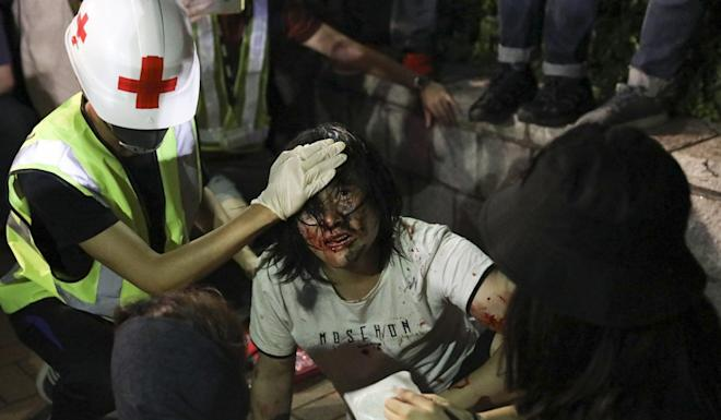 An injured protester is given first aid during a clash with police in September. Photo: K.Y. Cheng