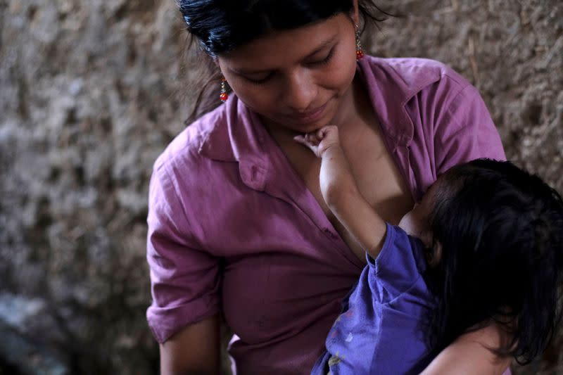 Brenda Hernandez breastfeeds her 22-months-old daughter Yesmin Anayeli, who has been diagnosed with severe malnutrition, at their home, in La Ceiba