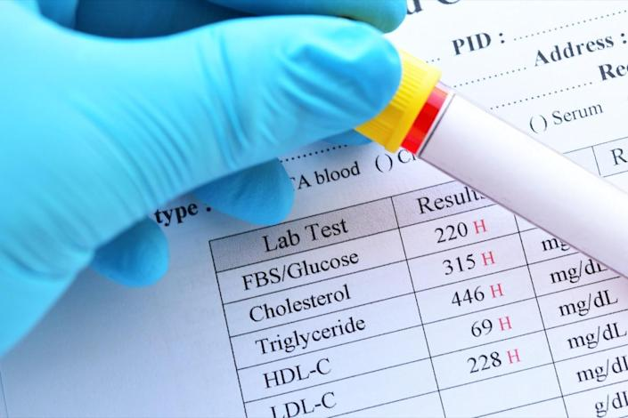 Abnormal high results of lipid profile and blood sugar test with blood sample tube