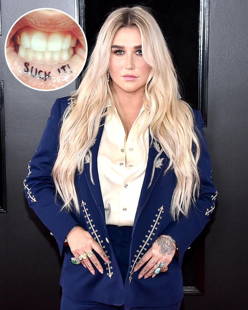 Kesha's lip tattoo just looks painful. (Photo: Kesha via Instagram/Getty Images)