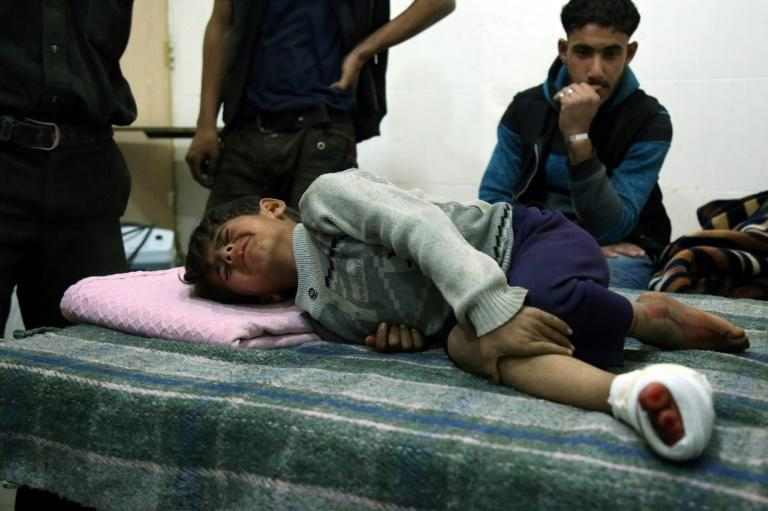 A wounded child on a bed at a makeshift hospital in the Eastern Ghouta town of Kafr Batna on November 18, 2017