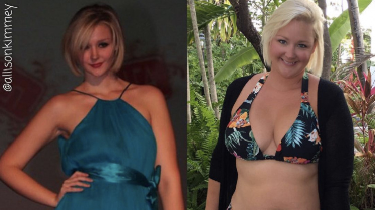 A formerly size 6 mom is sharing a transformation photo to remind women that being thin doesn't guarantee a happy life. (Photo: Allison Kimmey via Instagram)