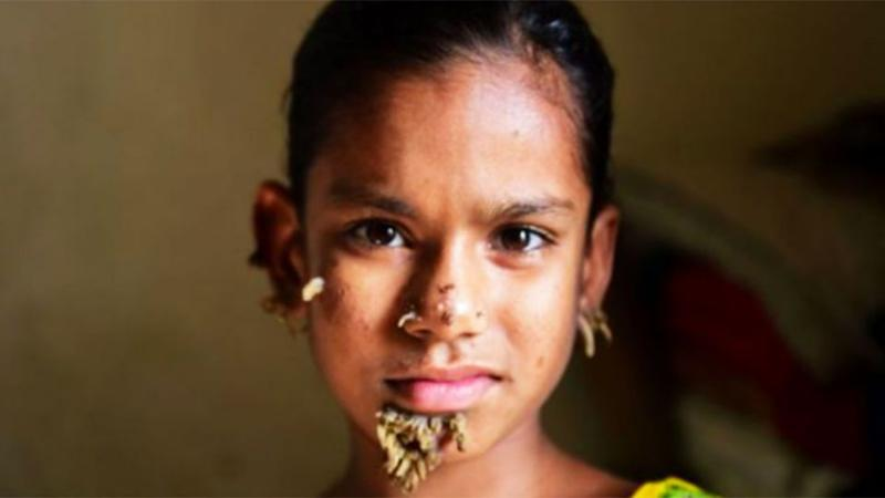 Little Sahana may be the first female in Bangladesh to be diagnosed with the so called 'tree man syndrome'. Photo: AFP