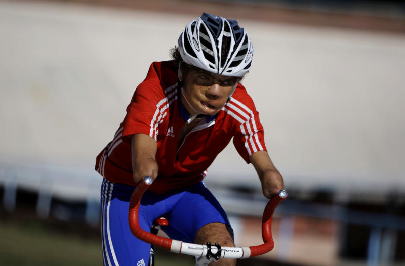 In this Jan. 26, 2012 photo, Damian Lopez, who was injured as a teenager by a high-voltage electrical wire when untangling a kite, trains at the Reinaldo Paseiro velodrome in Havana, Cuba. The accident cost him both his forearms, melted much of the skin from his face and left him in a coma from which doctors predicted he would never emerge. Twenty-two years later, Lopez, 35, is close to realizing an unlikely dream by representing Cuba at the 2012 London Paralympics in cycling, the sport that he says kept him from drowning in self-pity and despair.  (AP Photo/Franklin Reyes)