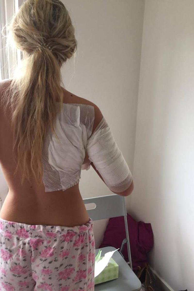 Isobella shared this image of her bandaged body after being treated for burns