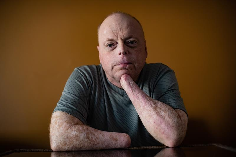 B.C. man prepares to be first to receive double-hand transplant in Canada