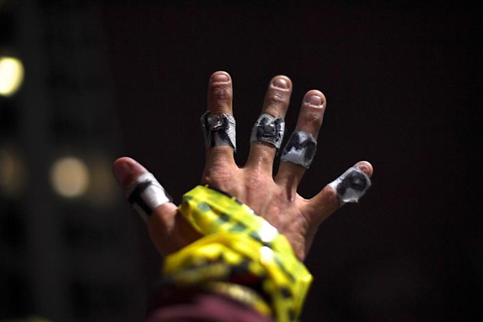 <p>Richard Scheerer, 29, displays his taped hands with TRUMP written on one side and expletives (not pictured) on the other, while demonstrating against the election of Republican Donald Trump as President of the United States in Philadelphia, Pa., on Nov. 14, 2016. (Mark Makela/Reuters) </p>