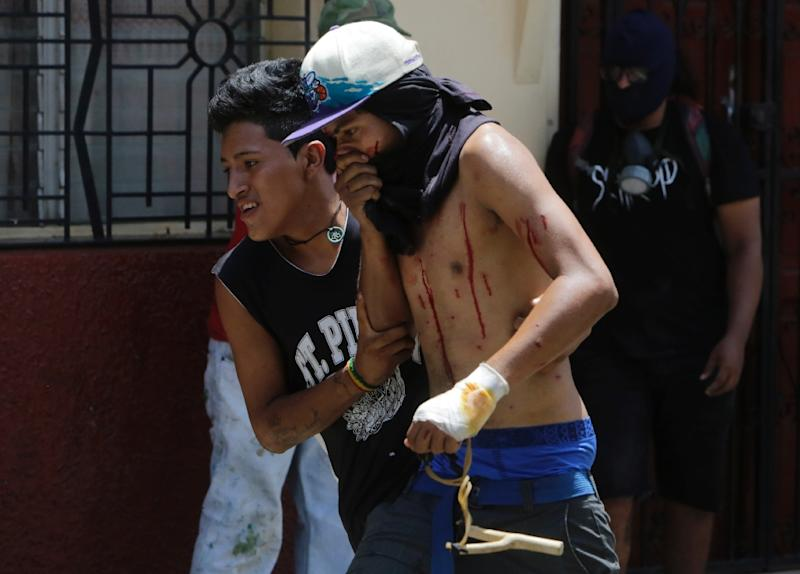 An injured demonstrator is helped after being shot during clashes against riot police in Masaya (AFP Photo/INTI OCON)