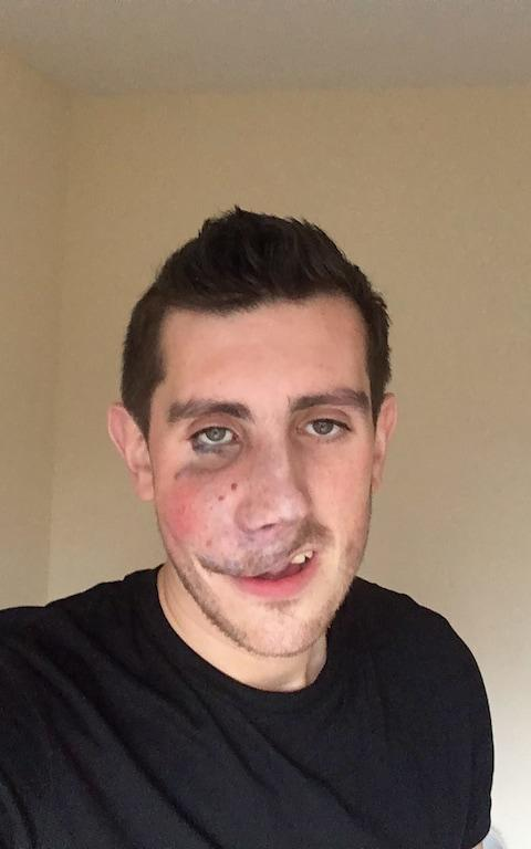 Rory McGuire, 24, is a personal adviser for a health-insurance company. He was born with a birthmark on his face. In 2016 he underwent an operation to have 85 per cent of it removed.