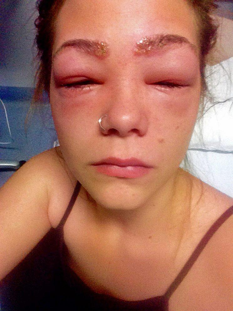 Durie's allergic reaction to at-home dye. (Photo: Caters News)