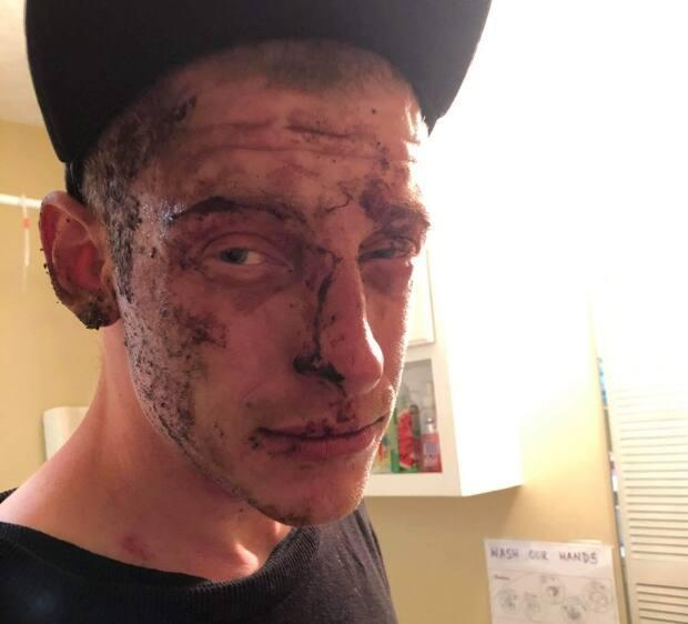 Russell claims he was bloodied, bruised and swollen after he was punched repeatedly by an RCMP officer during an arrest in May.