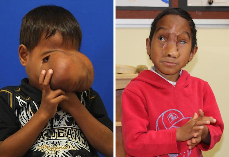 A combo handout photo shows seven-year-old Jhonny Lameon from the Philippines before and after his surgery, released on July 3, 2014 by Monash Childrens Hospital in Melbourne