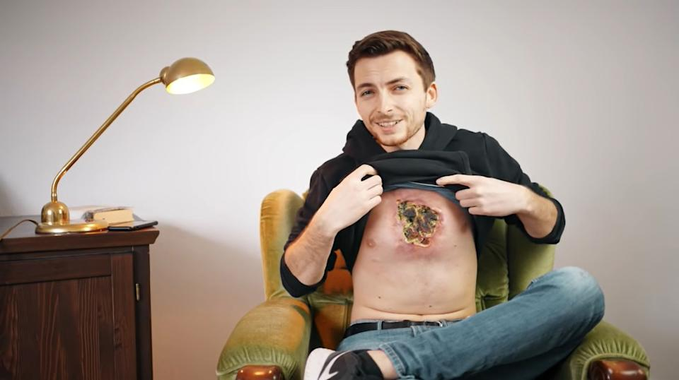 YouTube celebrity Philipp Mickenbecker, 23, claims doctors have given up on him. Source: Newsflash/Australscope