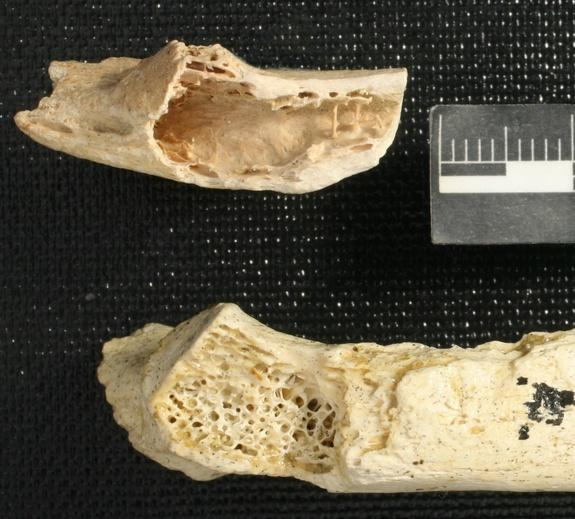 Oldest Human Tumor Found in Neanderthal Bone