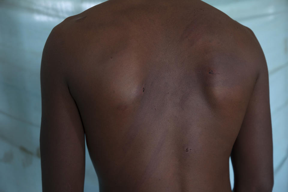 """Adhanom Gebrehanis, a 20-year-old Tigrayan refugee from Korarit village, shows the welts on his back from a beating by Eritrean soldiers, after a checkup at the Sudanese Red Crescent clinic shortly after his arrival in Hamdayet, eastern Sudan, near the border with Ethiopia, on March 18, 2021. """"They do these things openly to make us ashamed."""" He described watching Eritreans pull aside 20 women from a group of Tigrayans and rape them. The next day, 13 of the women were returned. (AP Photo/Nariman El-Mofty)"""