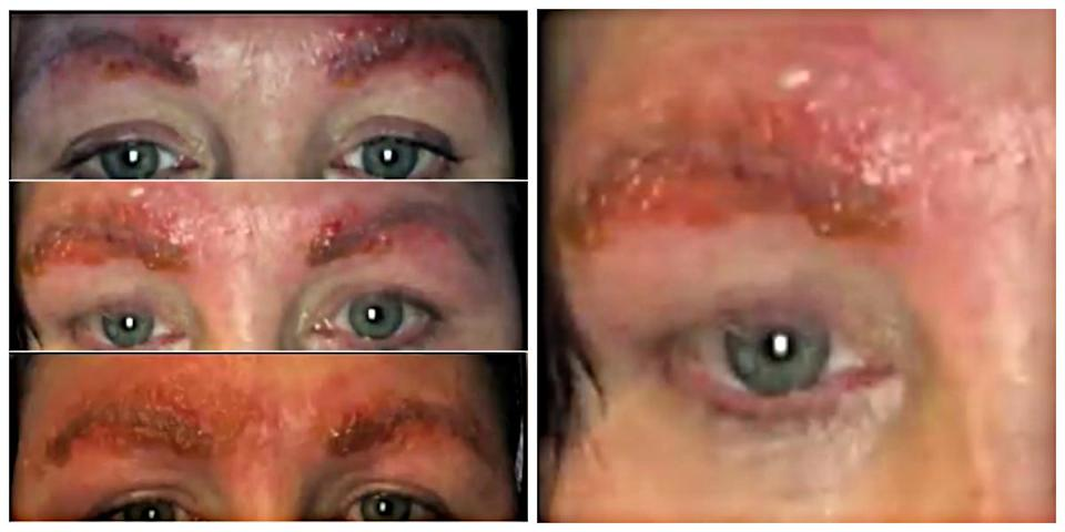"""""""I was terrified. I didn't know .My face is swelling up — my eyes are closing…"""" Jennifer said.<em> (Photo screenshots: WDIV-TV)<br></em>"""