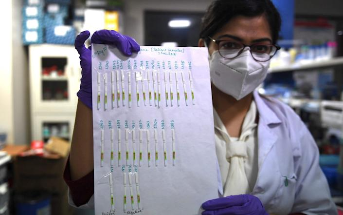 A researcher holds a sheet with paper strip samples for coronavirus tests developed by the CSIR-Institute of Genomics and Integrative Biology - AFP