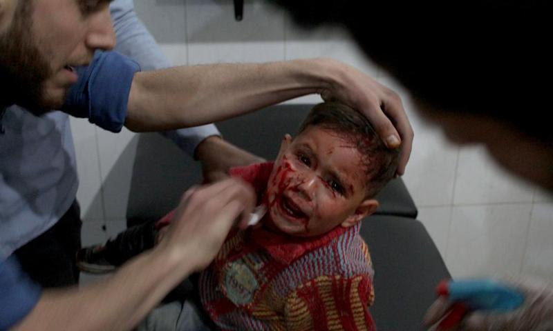 An injured Syrian child is treated after an airstrike in the east Ghouta region of Damascus, 4 April.