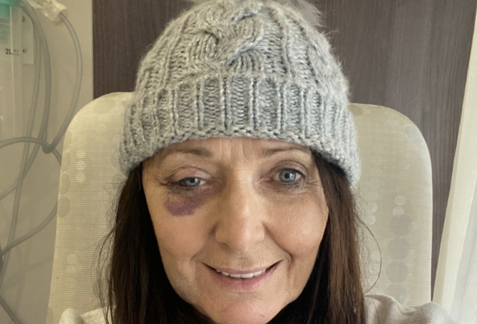 Ms Brown is seen wearing a beanie and featuring bruising around her right eye after the surgery. Source: Supplied