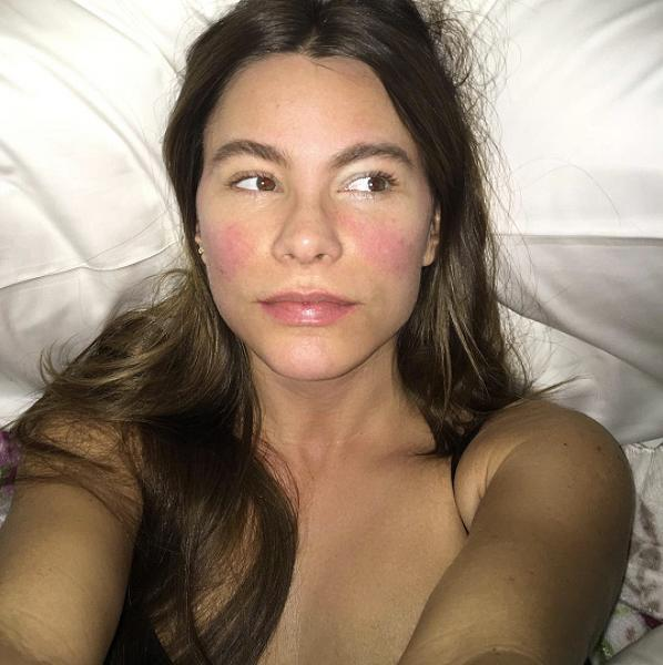 """<p><strong>When: April 11, 2017 </strong><br> It's rare to catch Sofia Vergara without makeup, but the CoverGirl stunner caught a bit of a fever while shooting in the rain in Rome — it was in that special moment she shared a makeup-free selfie on Instagram. No blush needed when you've got a fever of 102 F! """"I just realized that 102 fever gives u the perfect shades of pink. I need this colours @covergirl #Imawimp #thatswhatIgetforshootingintheraininRome #iwouldntmakeitpast2daysonNakedandAfraid,"""" wrote Sofia Vergara. (Photo: Instagram) </p>"""
