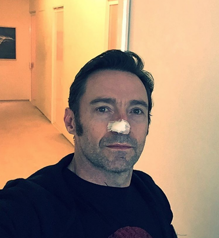 Hugh Jackman warns fans to wear sunscreen. (Photo: Instagram)