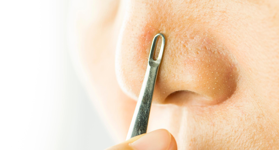 Amazon's best-selling blackhead extractor is on sale right now for just $11.