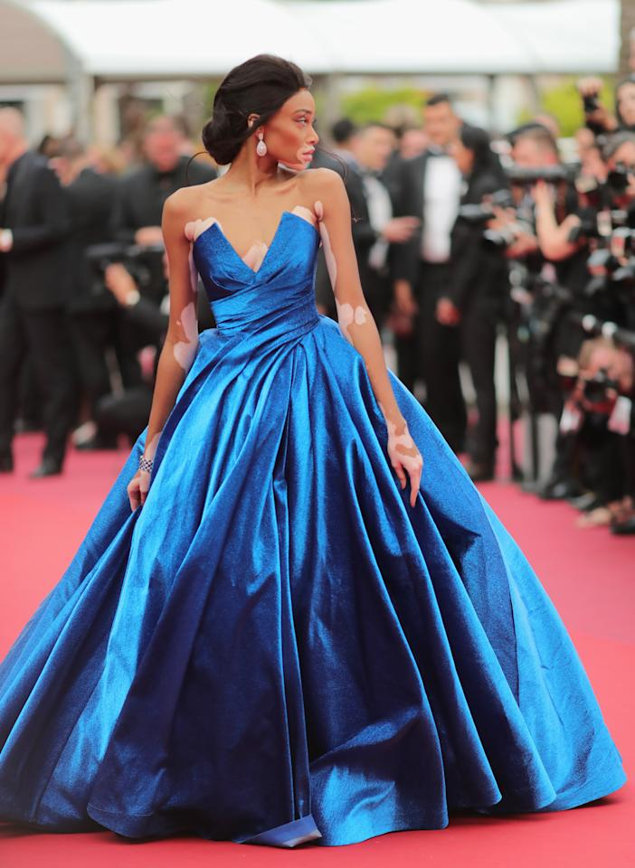 Bringing her fashion A game, Winnie Harlow chose a show-stopping gown in sapphire blue by Zuhair Murad. <em>[Photo: Getty]</em>