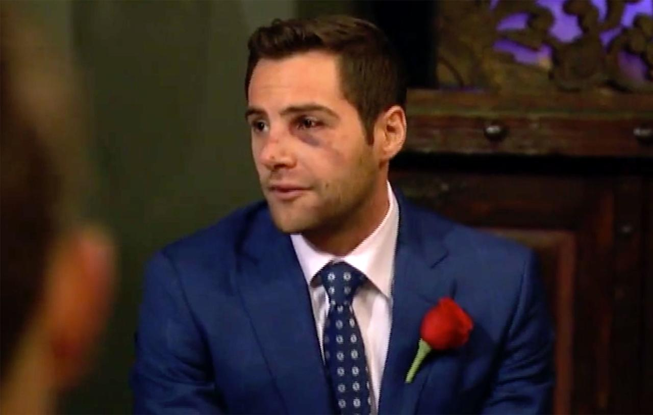 """Ouch! David, a contestant on Becca Kufrin's season of<em>The Bachelorette</em>, had to take a trip to the hospital after falling out of his top bunk bed.  His sacrifice was rewarded: once he returned, <a href=""""https://people.com/tv/why-bachelorette-becca-kufrin-gave-garrett-first-impression-rose/"""">Kufrin gave</a> him a rose before the official ceremony so he could (safely) go to bed. (""""Bottom bunk from now on,"""" <a href=""""https://people.com/tv/bachelorette-david-reveals-face-bunk-bed/"""">he promised her</a>.)"""