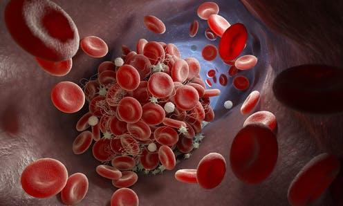 "<span class=""attribution""><a class=""link rapid-noclick-resp"" href=""https://www.shutterstock.com/image-illustration/depiction-blood-clot-forming-inside-vessel-1830232025"" rel=""nofollow noopener"" target=""_blank"" data-ylk=""slk:Tatiana Shepeleva/Shutterstock"">Tatiana Shepeleva/Shutterstock</a></span>"