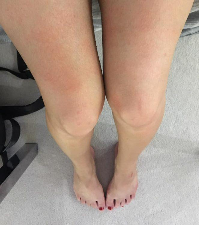 woman legs with rashes