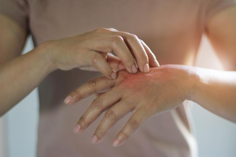 Healthcare and medical concept. Female scratching the itch on her hand, cause of itching from skin diseases, dry skin, allergy, chemical, allergic to detergent or dishwashing liquid and dermatitis, insect bites, burned, drug. Health problem.