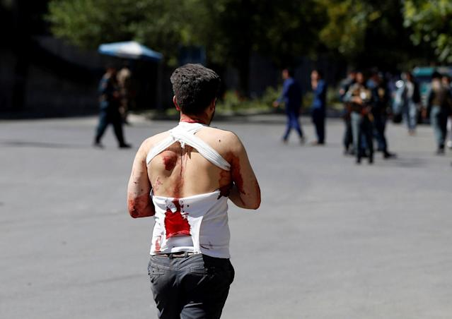 <p>An Injured Afghan man walks on the street near a hospital after a blast in Kabul, Afghanistan May 31, 2017. (Omar Sobhani/Reuters) </p>