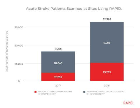 Data Suggests New Guidelines in Stroke Care Have Led to Record Numbers of Patients Treated