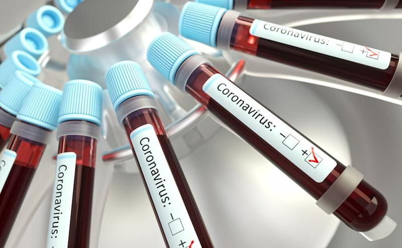 United States patient with coronavirus of unknown origin was denied test for days