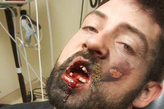 Andrew Hall said he lost seven teeth and suffered second degree burns when an e-cigarette exploded in his mouth. Source: Facebook